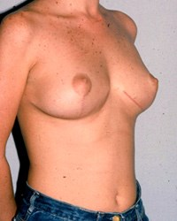 breast-lift1-after.jpg