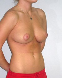 breast-lift2-after.jpg