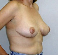 breast-lift3-after.jpg
