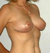 breast-lift4-after.jpg