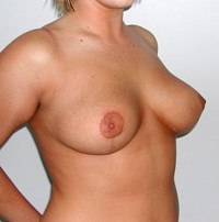 breast-lift5-after.jpg