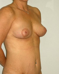breast-lift6-after.jpg