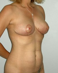 breast-lift7-after.jpg