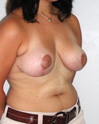 breast-lift8-after.jpg
