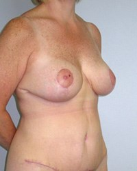 breast-lift9-after.jpg
