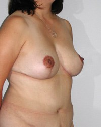 breast-lift10-after.jpg