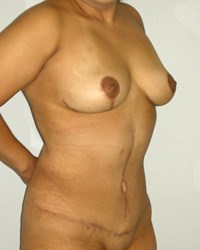 breast-lift11-after.jpg