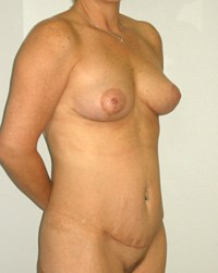 breast-lift12-after.jpg