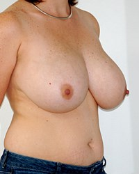 breast-reduction-7a.jpg