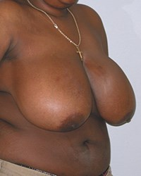 breast-reduction-13a.jpg