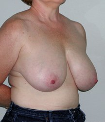 breast-reduction-16a.jpg