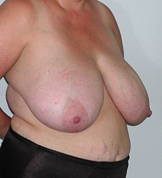 breast-reduction-18a.jpg