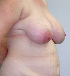 breast-reduction-19a.jpg