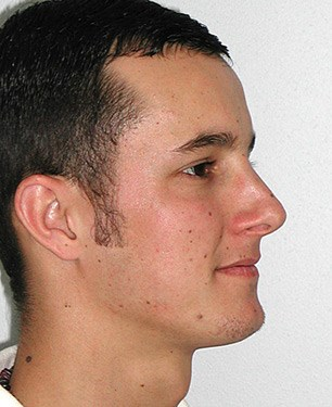 Case-11--rhinoplasty-post.jpg