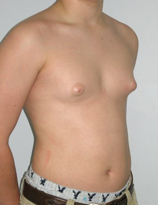 Gynecomastia-case-3-before.jpg