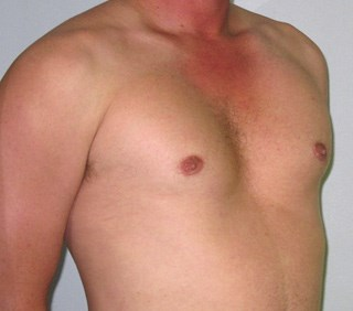Gynecomastia-case-4-after.jpg