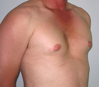 Gynecomastia-case-4-before.jpg