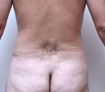 Liposculpture-of-flanks-aft.jpg