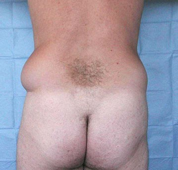 Liposculpture-of-flanks-bef.jpg