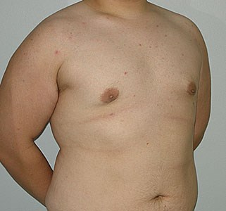 Male-breast-enlargement-post.jpg