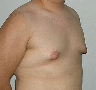 Male-breast-enlargement-pre.jpg