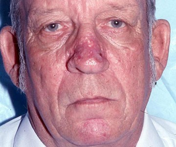 rhinophyma-after.jpg