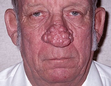 rhinophyma-before.jpg
