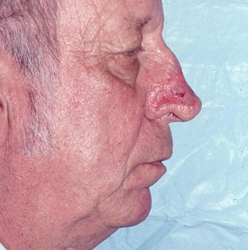 rhinophyma-side-after.jpg