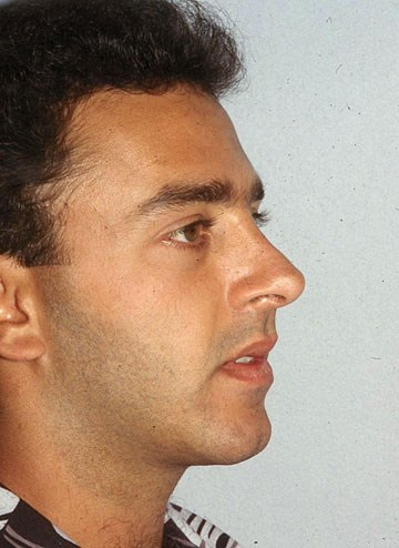 Rhinoplasty-2-after.jpg