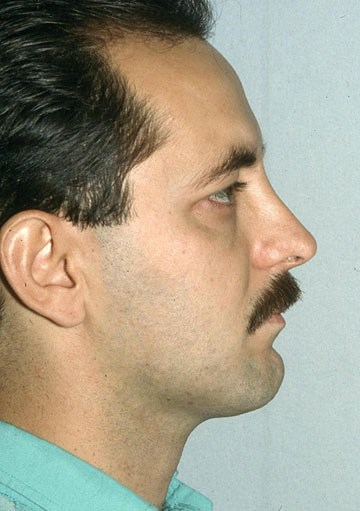 Rhinoplasty-after-side.jpg