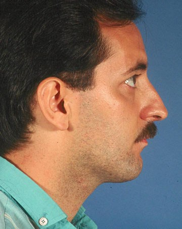Rhinoplasty-before-side.jpg