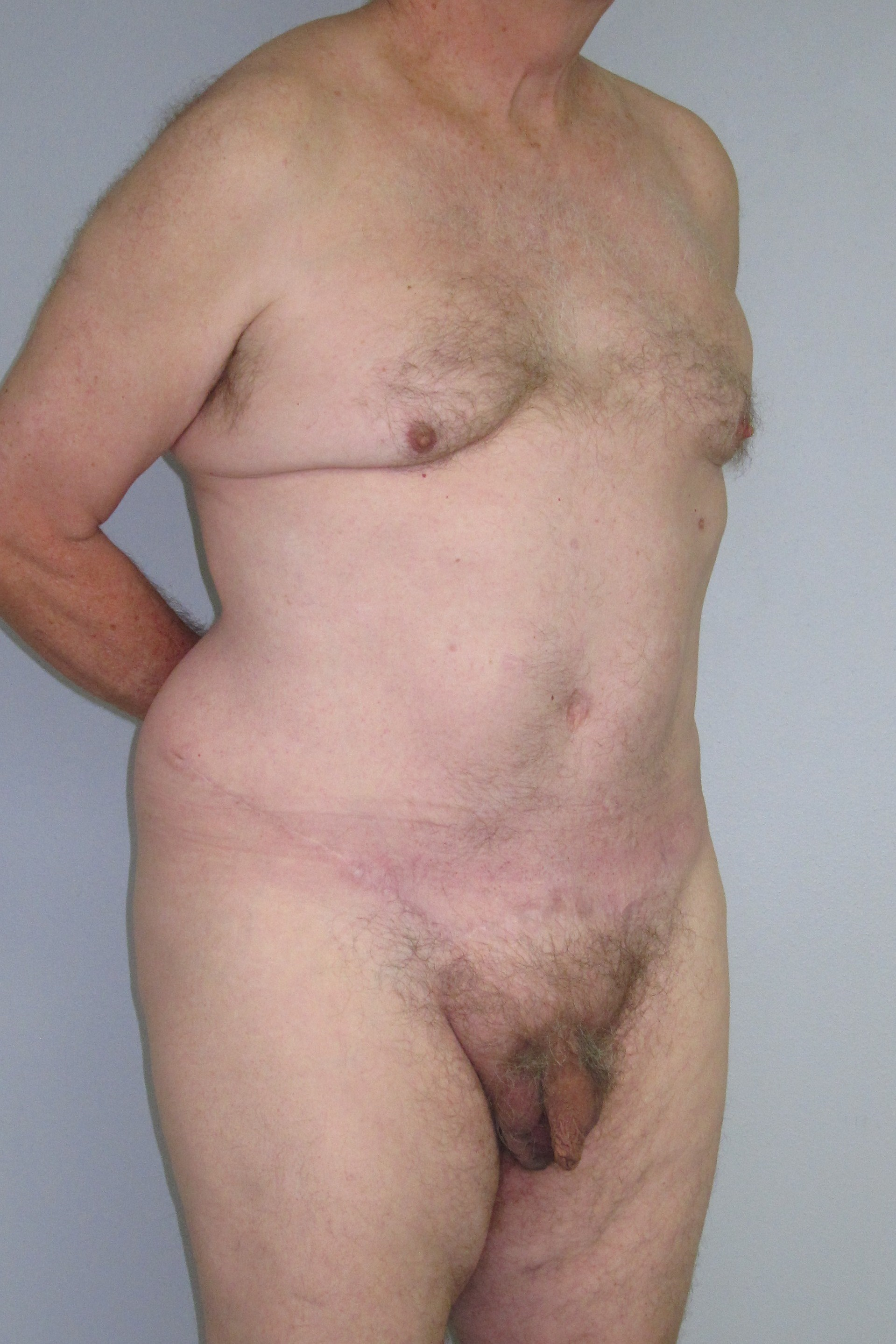 Abdominoplasty in males case 1 b.JPG