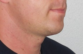 Case 2 chin contouring post.JPG